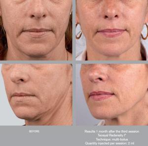 Tratament piele stralucitoare Redensity